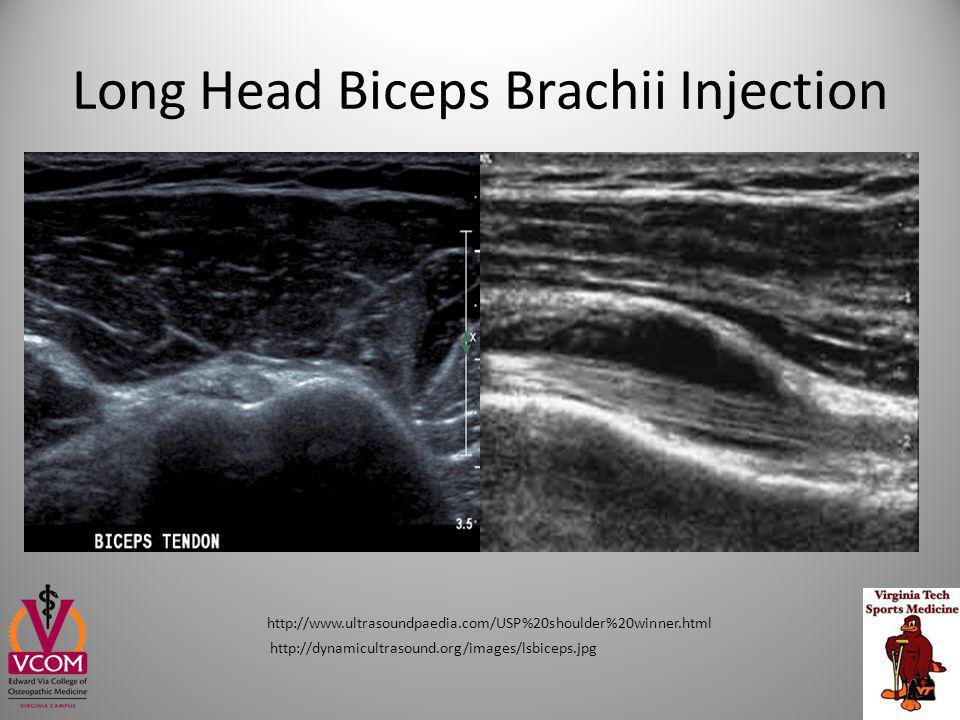 Long Head Biceps Brachii Injection http://www.ultrasoundpaedia.com/USP%20shoulder%20winner.html http://dynamicultrasound.org/images/lsbiceps.jpg