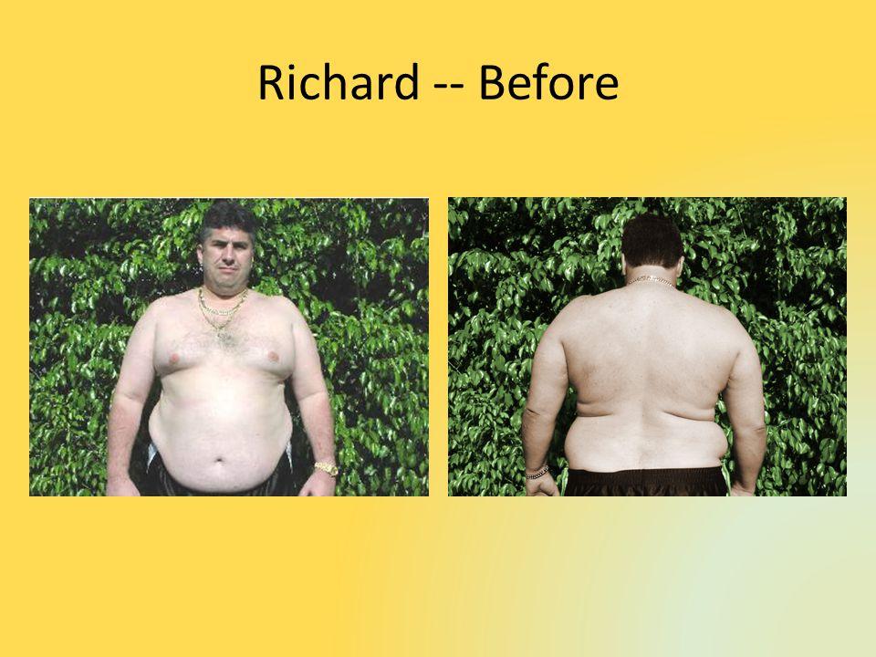 Richard -- Before