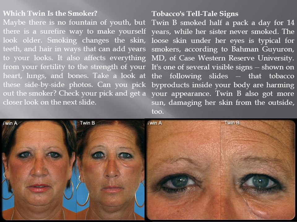 Poor Skin Tone Smoking chronically deprives the skin of oxygen and nutrients.