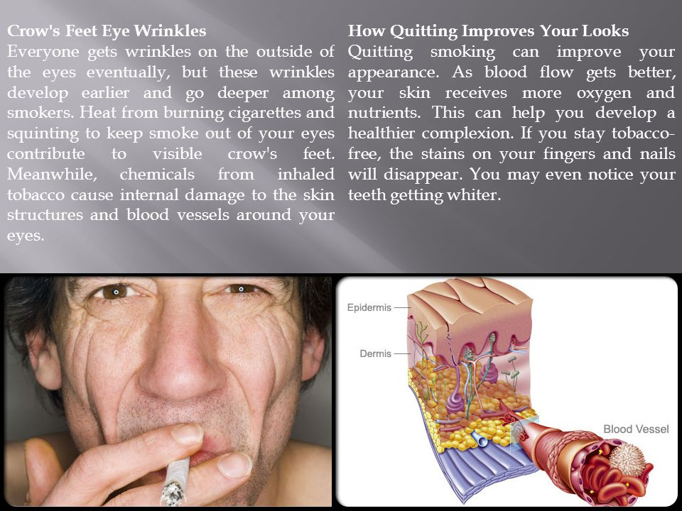 Combating Skin Damage: Creams When you quit smoking, you make your skin more resistant to premature aging.