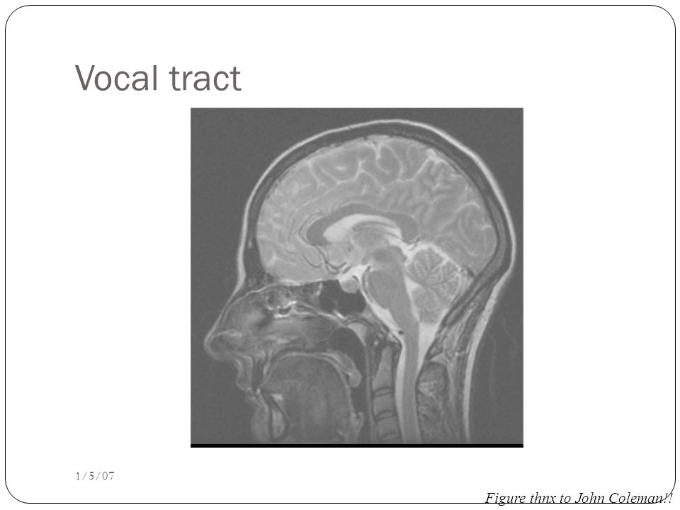How formants are produced Q: Why do different vowels have different pitches if the vocal cords are vibrating at the same rate.