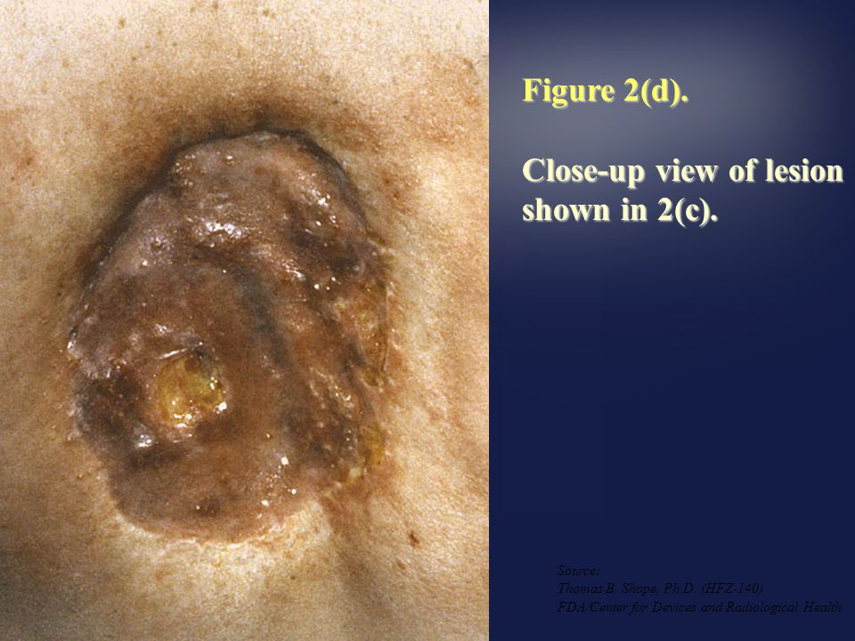 Figure 2(c). Appearance of skin injury approximately 18 to 21 months following procedures, evidencing tissue necrosis. Source: Thomas B. Shope, Ph.D.