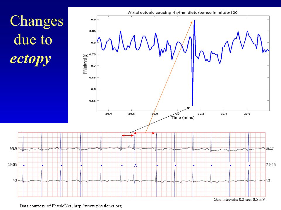 Changes due to ectopy Data courtesy of PhysioNet;