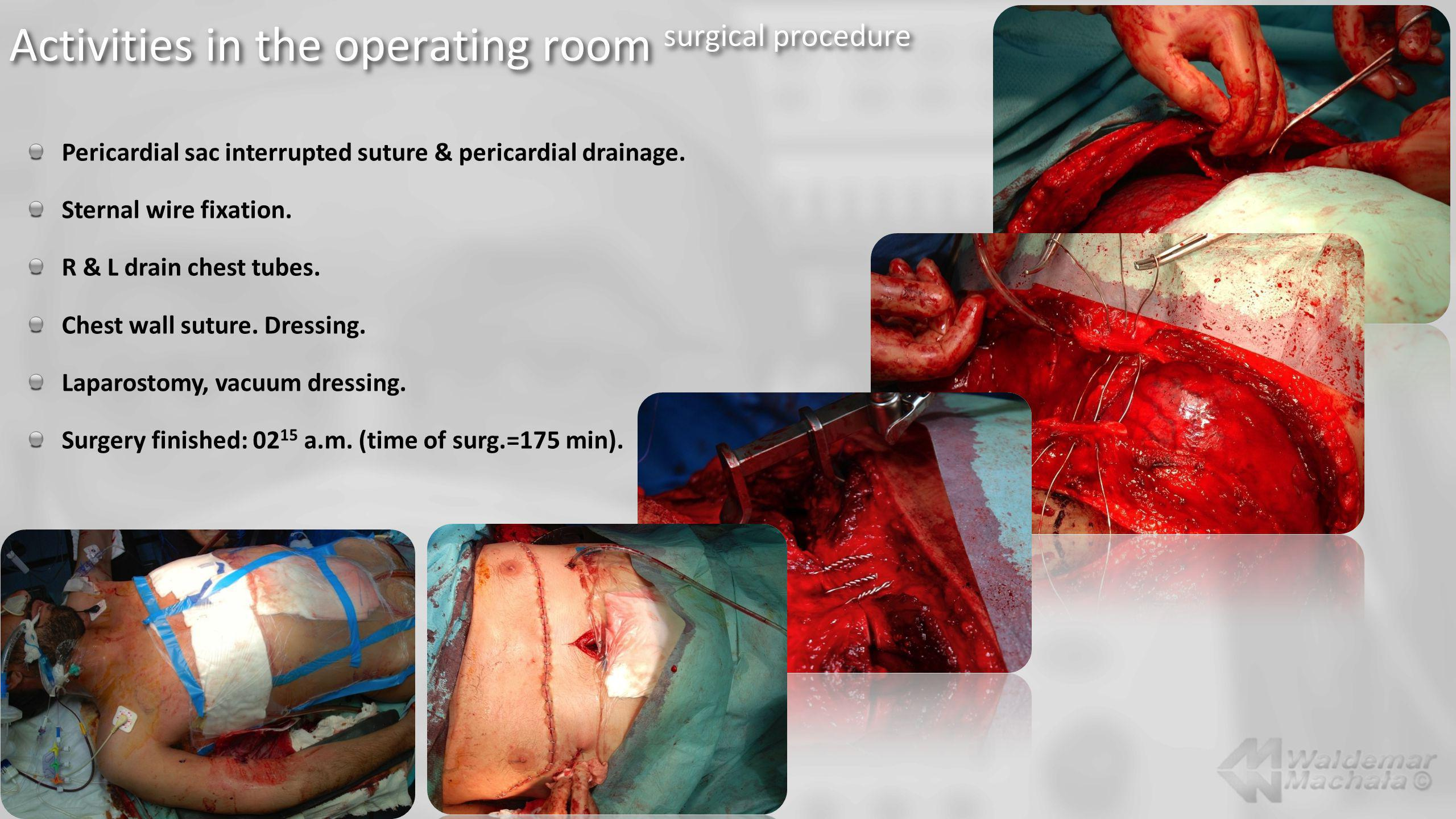 Activities in the operating room surgical procedure Pericardial sac interrupted suture & pericardial drainage. Sternal wire fixation. R & L drain ches