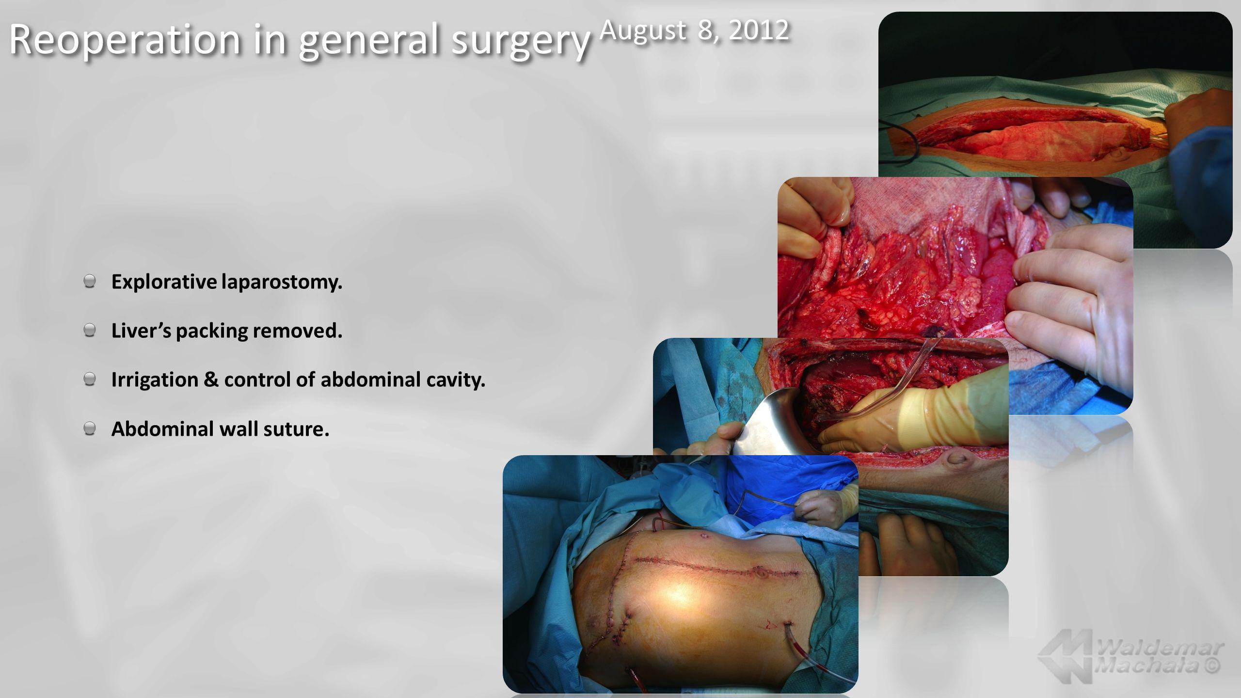 Explorative laparostomy. Livers packing removed. Irrigation & control of abdominal cavity. Abdominal wall suture.
