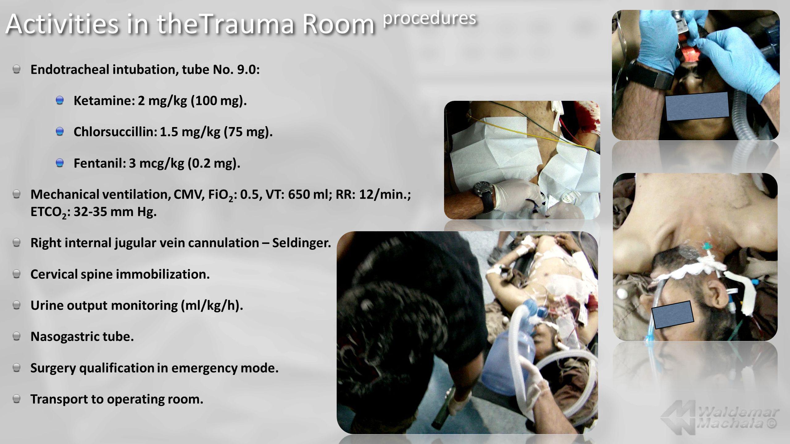 Endotracheal intubation, tube No. 9.0: Ketamine: 2 mg/kg (100 mg). Chlorsuccillin: 1.5 mg/kg (75 mg). Fentanil: 3 mcg/kg (0.2 mg). Mechanical ventilat