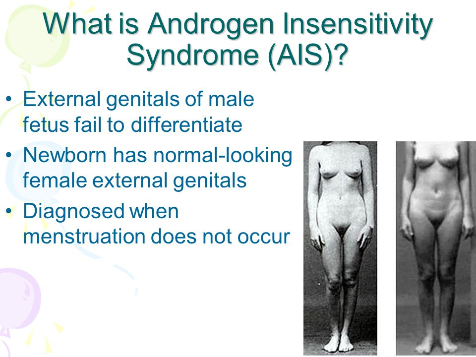 What is Androgen Insensitivity Syndrome (AIS).