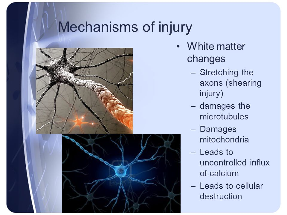 Mechanisms of injury White matter changes –Stretching the axons (shearing injury) –damages the microtubules –Damages mitochondria –Leads to uncontroll