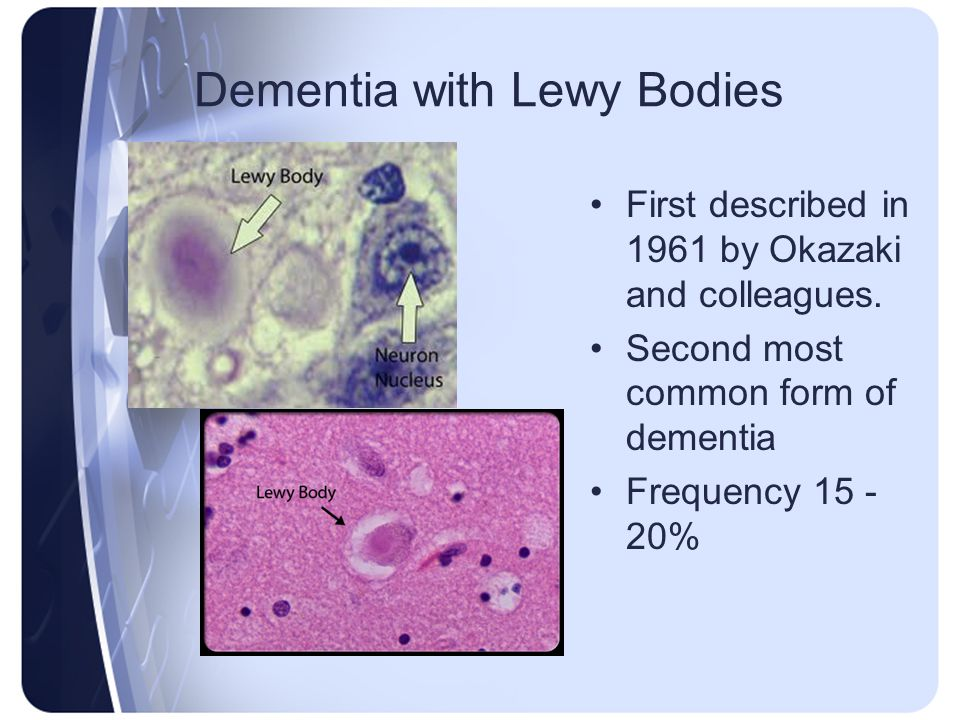 First described in 1961 by Okazaki and colleagues. Second most common form of dementia Frequency 15 - 20%