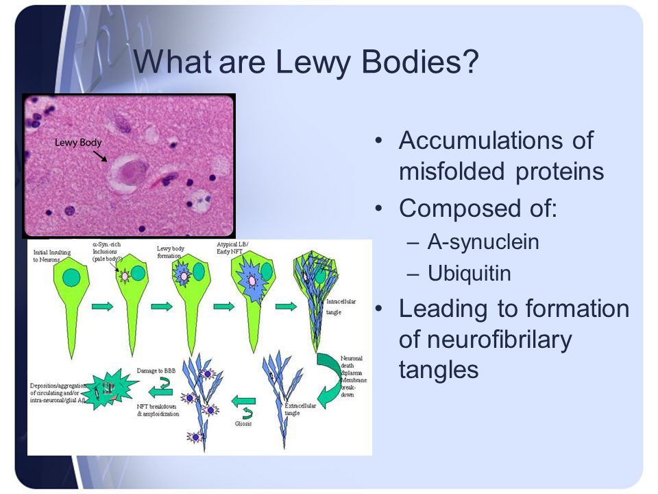 What are Lewy Bodies? Accumulations of misfolded proteins Composed of: –Α-synuclein –Ubiquitin Leading to formation of neurofibrilary tangles