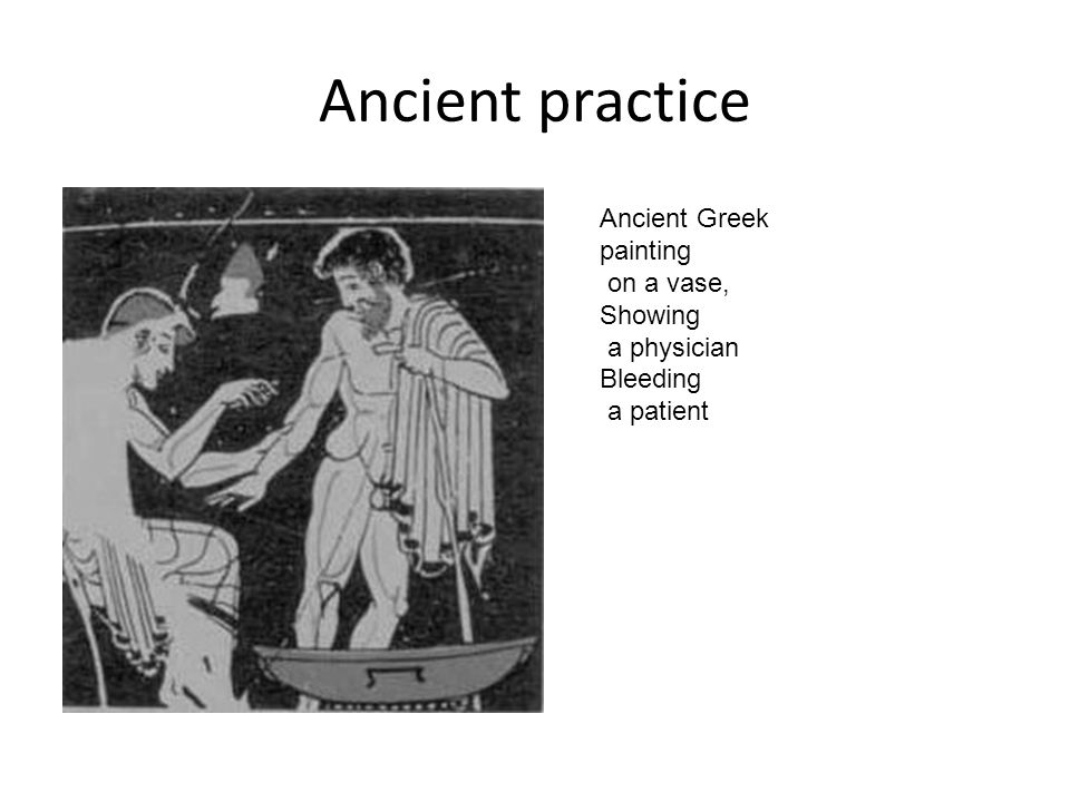 Ancient practice Ancient Greek painting on a vase, Showing a physician Bleeding a patient