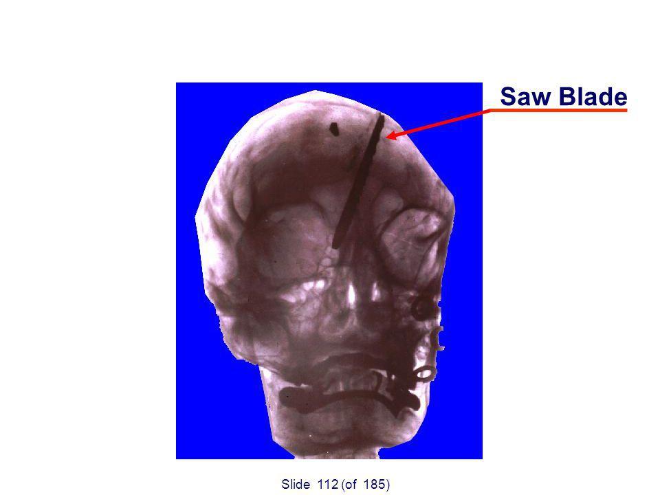 Slide 112 (of 185) Saw Blade 1910.213(s)(7)&(8)
