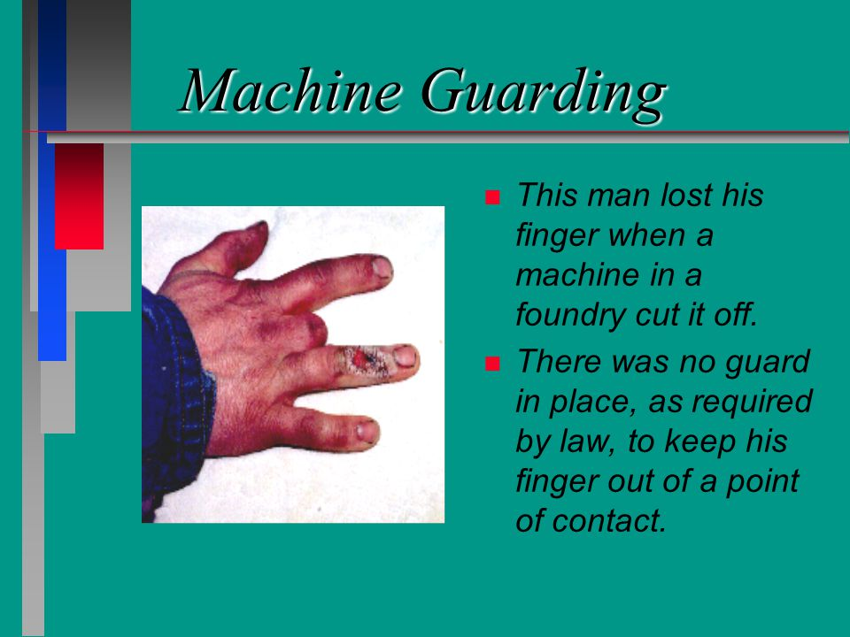 Machine Guarding n n This man lost his finger when a machine in a foundry cut it off. n n There was no guard in place, as required by law, to keep his