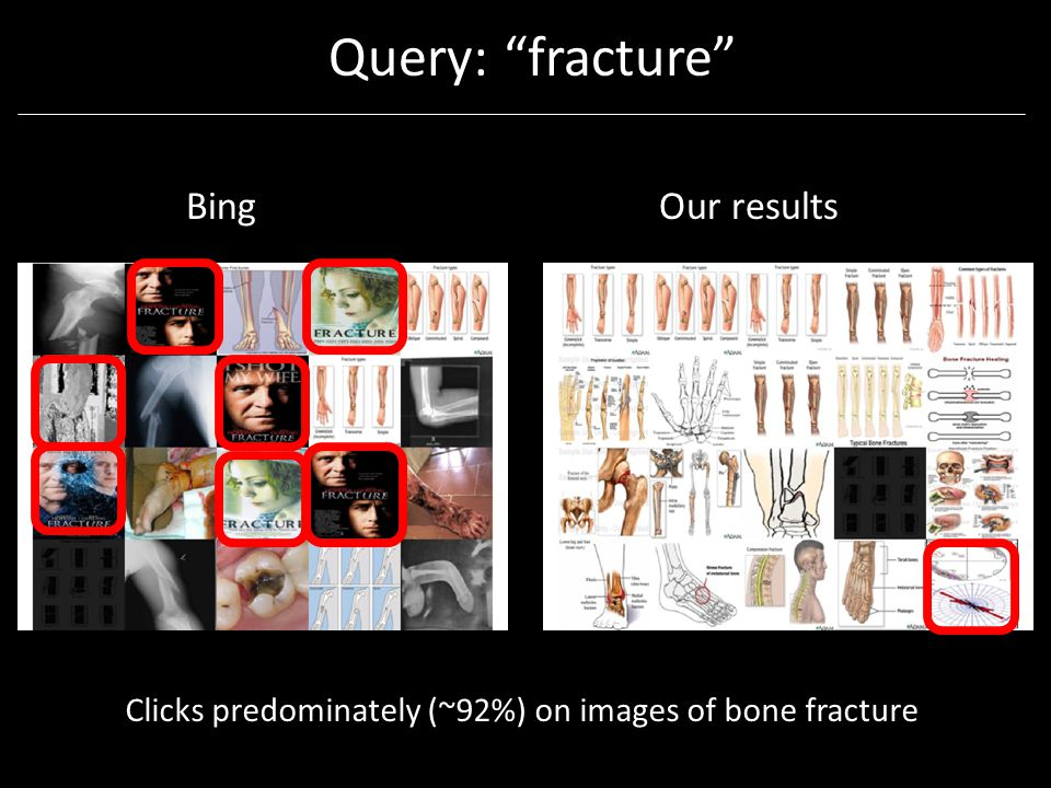 Query: fracture BingOur results Clicks predominately (~92%) on images of bone fracture