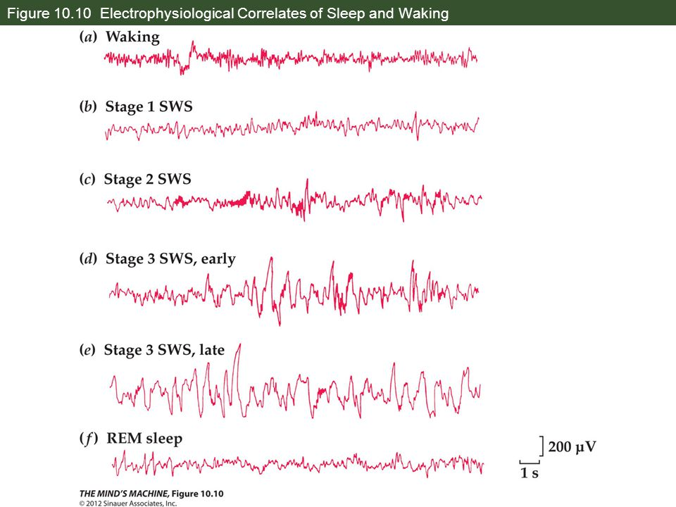Figure 10.10 Electrophysiological Correlates of Sleep and Waking