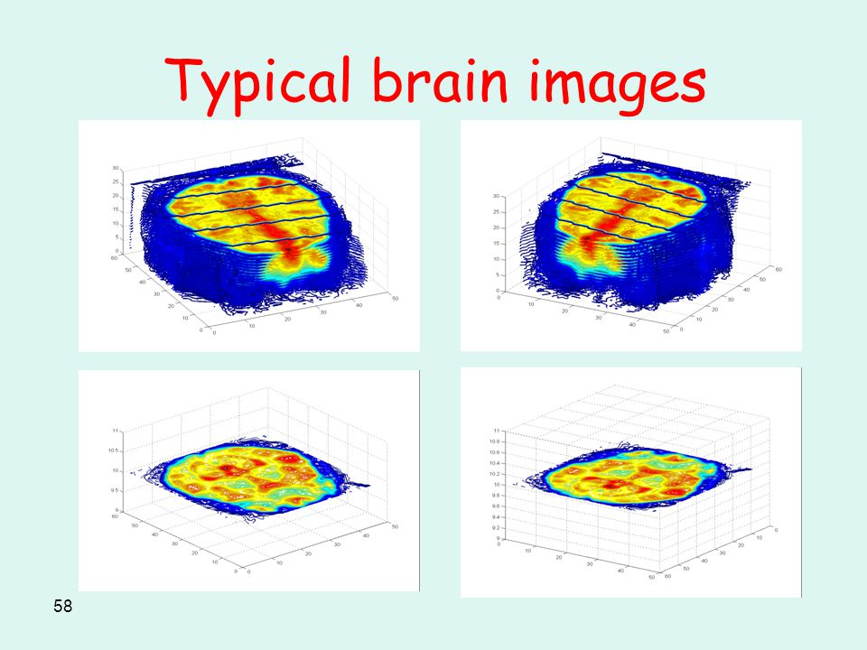 58 Typical brain images