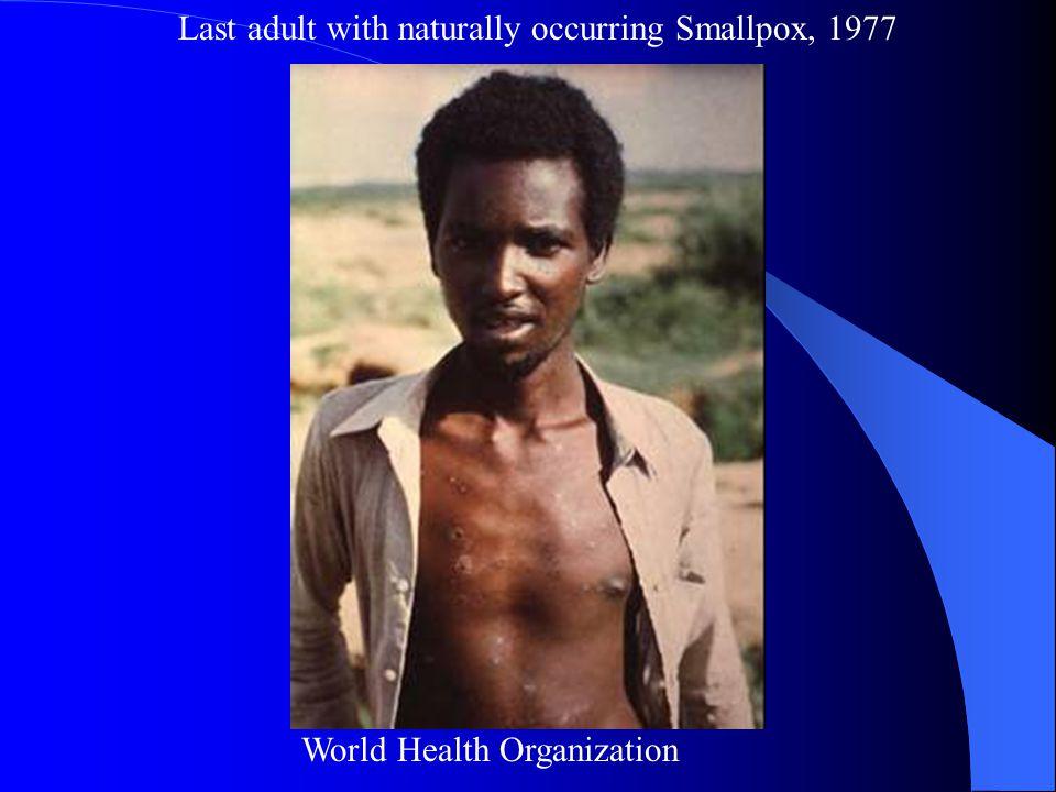 Last child with Smallpox CDC
