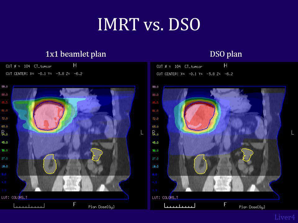 1x1 beamlet planDSO plan IMRT vs. DSO