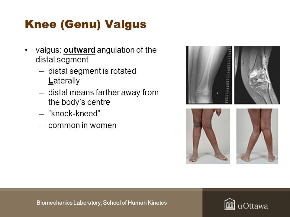 Biomechanics Laboratory, School of Human Kinetcs Knee (Genu) Valgus valgus: outward angulation of the distal segment –distal segment is rotated Latera