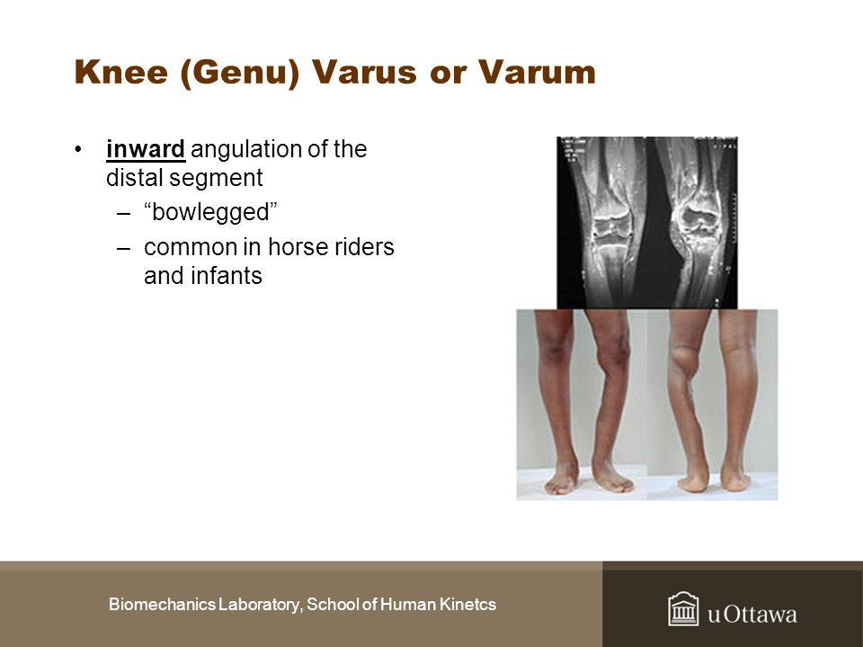 Biomechanics Laboratory, School of Human Kinetcs Knee (Genu) Varus or Varum inward angulation of the distal segment –bowlegged –common in horse riders