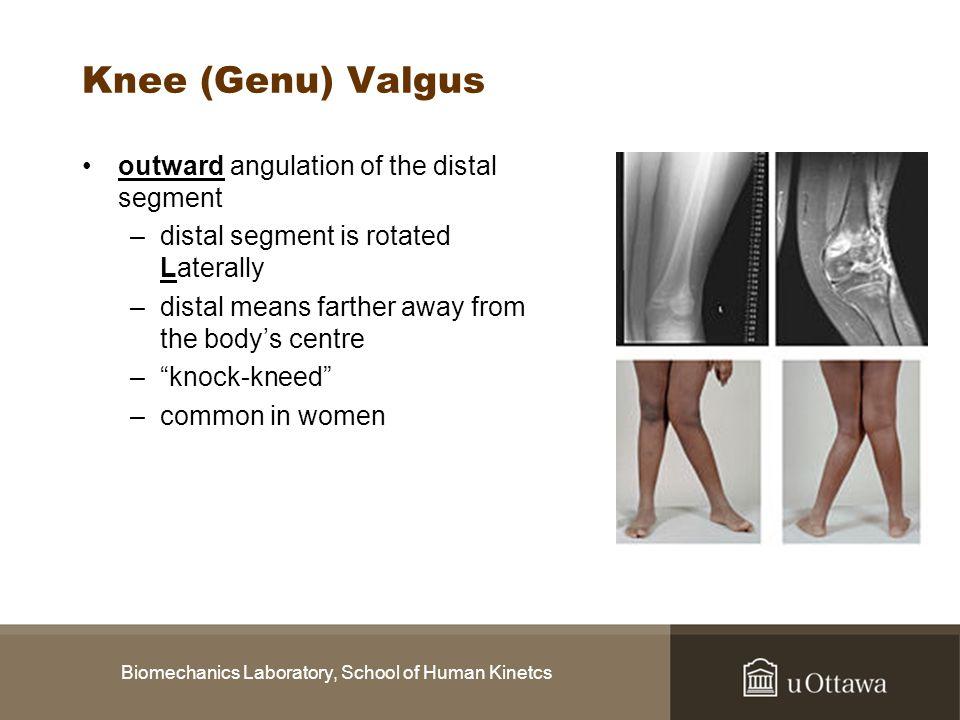 Biomechanics Laboratory, School of Human Kinetcs Knee (Genu) Valgus outward angulation of the distal segment –distal segment is rotated Laterally –dis