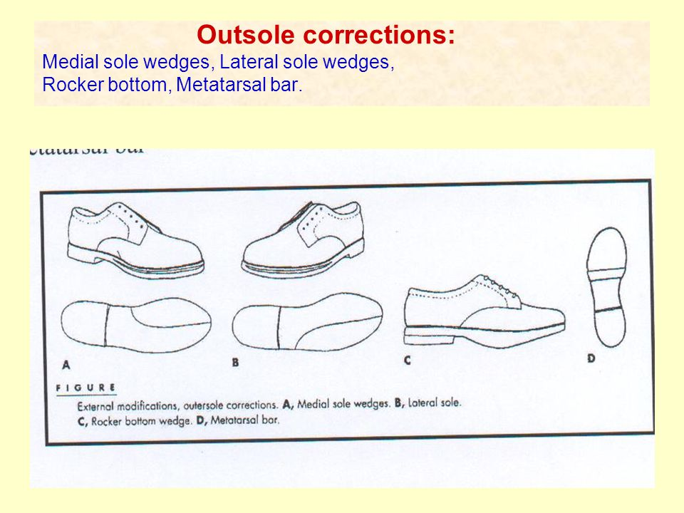 Custom Molded Inserts 1) Univeresity of California Berkeley (UCB) insert: a molded plastic design support to the medial longitudinal arch.