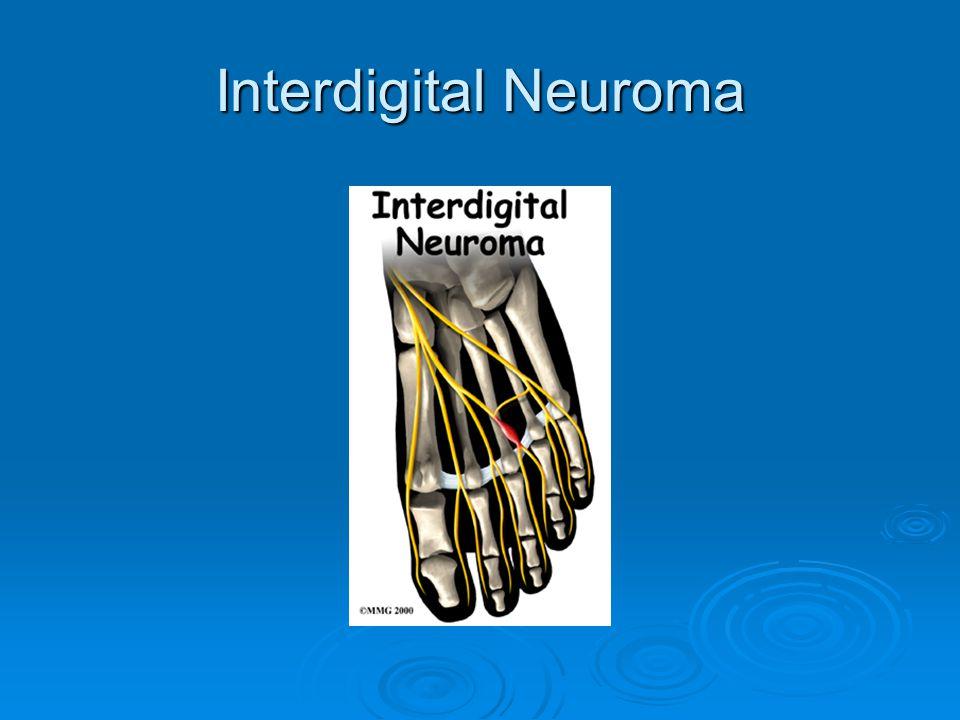 Interdigital Neuroma