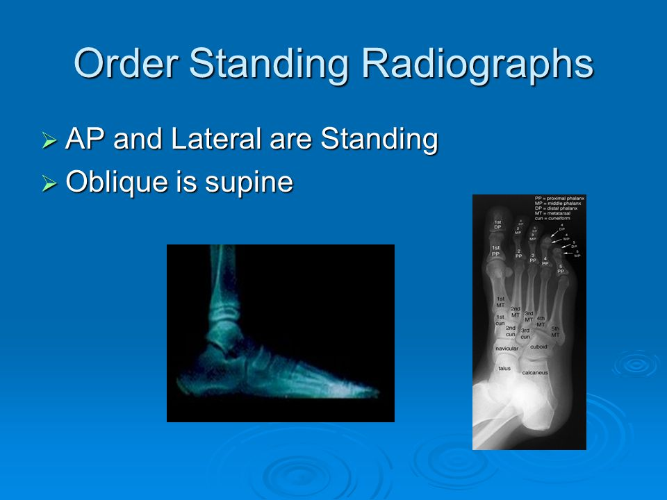 Order Standing Radiographs AP and Lateral are Standing AP and Lateral are Standing Oblique is supine Oblique is supine