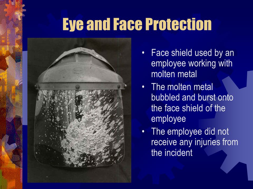 Eye and Face Protection Face shield used by an employee working with molten metal The molten metal bubbled and burst onto the face shield of the emplo
