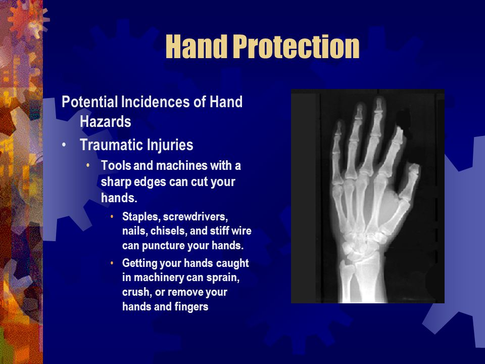 Hand Protection Potential Incidences of Hand Hazards Traumatic Injuries Tools and machines with a sharp edges can cut your hands. Staples, screwdriver