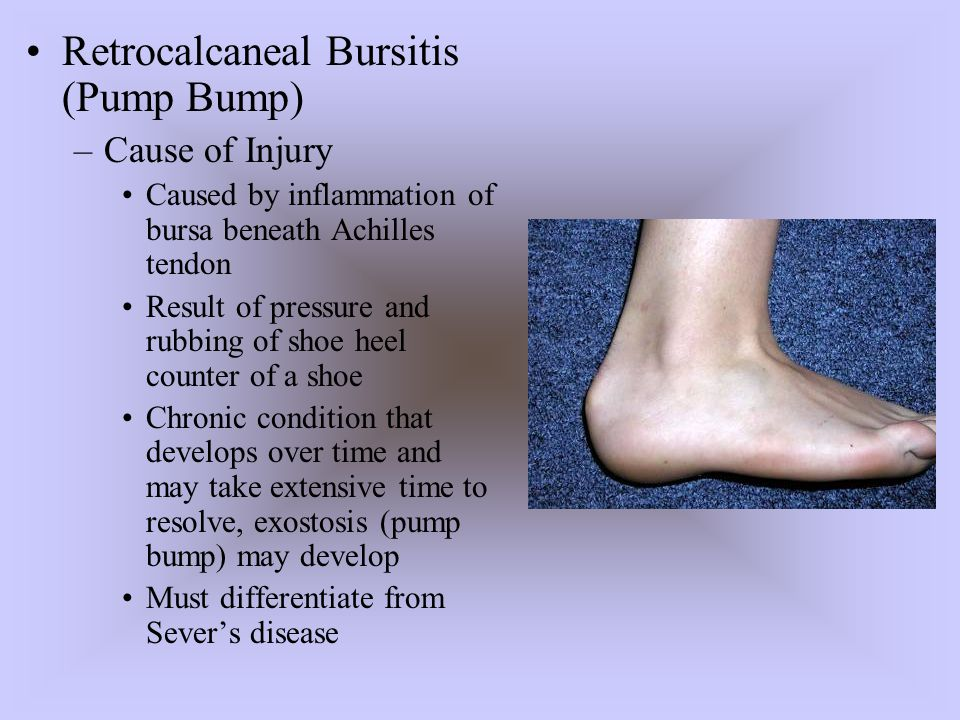 –Sign and Symptoms Signs of inflammation Tender, palpable bump on calcaneous Pain w/palpation superior and anterior to Achilles insertion, swelling on both sides of the heel cord –Care Routine stretching of Achilles, heel lifts to reduce stress, donut pad to reduce pressure Select different footwear that results in increasing or decreasing height of heel counter.