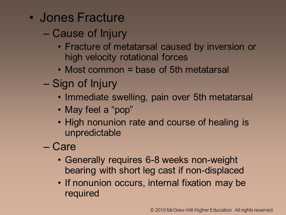 © 2010 McGraw-Hill Higher Education. All rights reserved. Jones Fracture –Cause of Injury Fracture of metatarsal caused by inversion or high velocity