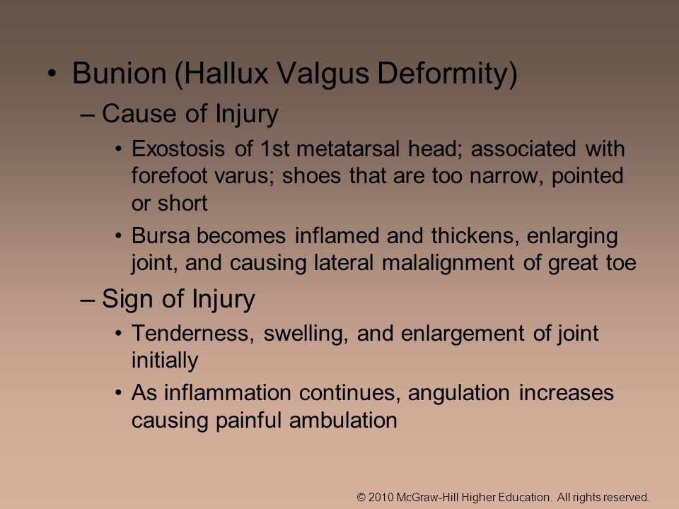 © 2010 McGraw-Hill Higher Education. All rights reserved. Bunion (Hallux Valgus Deformity) –Cause of Injury Exostosis of 1st metatarsal head; associat