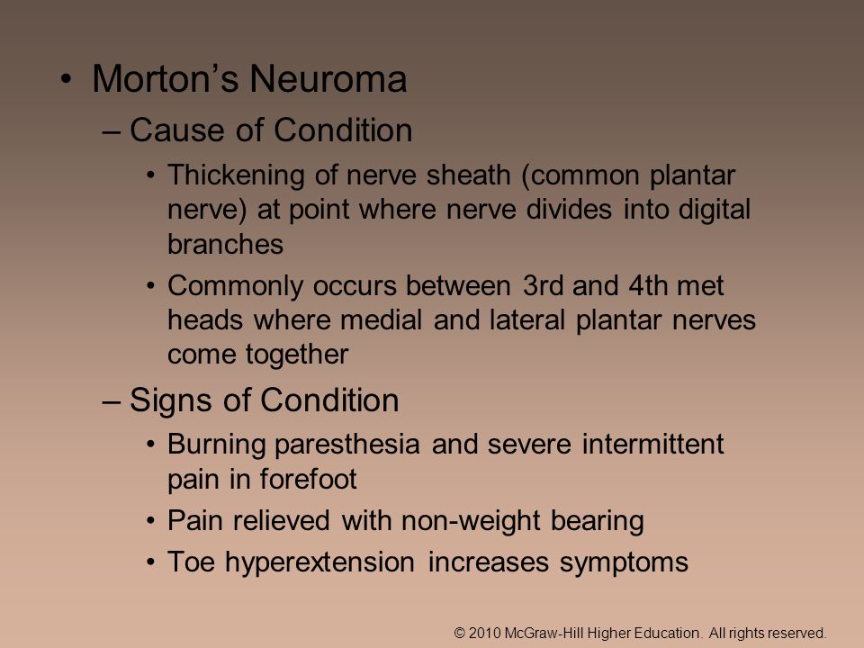 © 2010 McGraw-Hill Higher Education. All rights reserved. Mortons Neuroma –Cause of Condition Thickening of nerve sheath (common plantar nerve) at poi