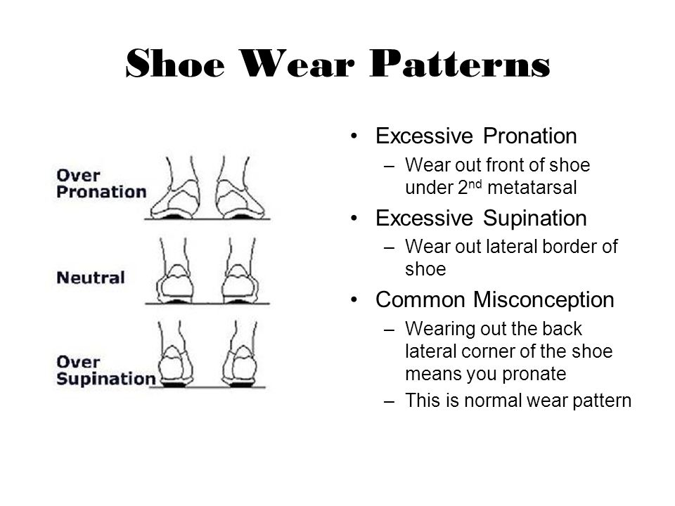 Shoe Wear Patterns Excessive Pronation –Wear out front of shoe under 2 nd metatarsal Excessive Supination –Wear out lateral border of shoe Common Misc