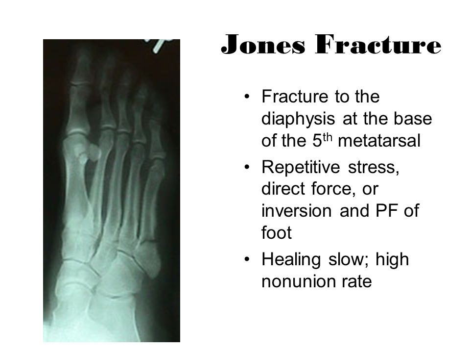 Jones Fracture Fracture to the diaphysis at the base of the 5 th metatarsal Repetitive stress, direct force, or inversion and PF of foot Healing slow;