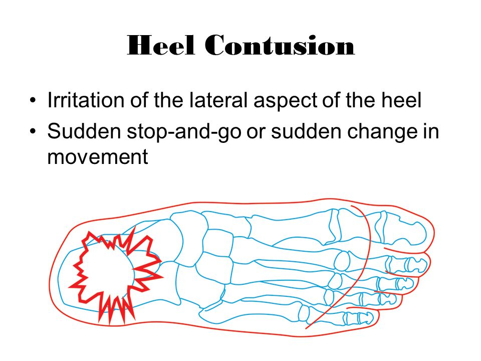 Heel Contusion Irritation of the lateral aspect of the heel Sudden stop-and-go or sudden change in movement