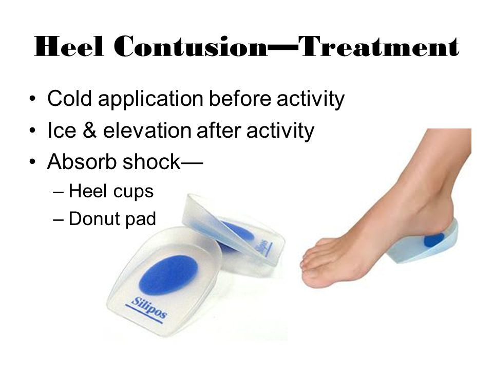 Heel ContusionTreatment Cold application before activity Ice & elevation after activity Absorb shock –Heel cups –Donut pad