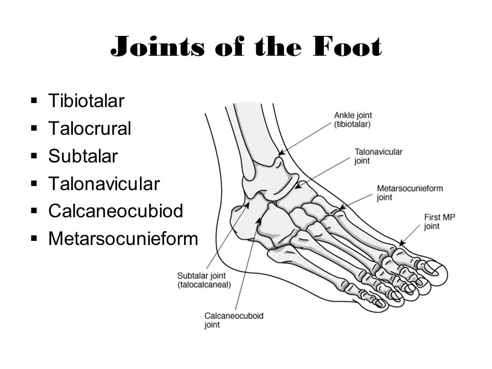 Jones Fracture Fracture to the diaphysis at the base of the 5 th metatarsal Repetitive stress, direct force, or inversion and PF of foot Healing slow; high nonunion rate