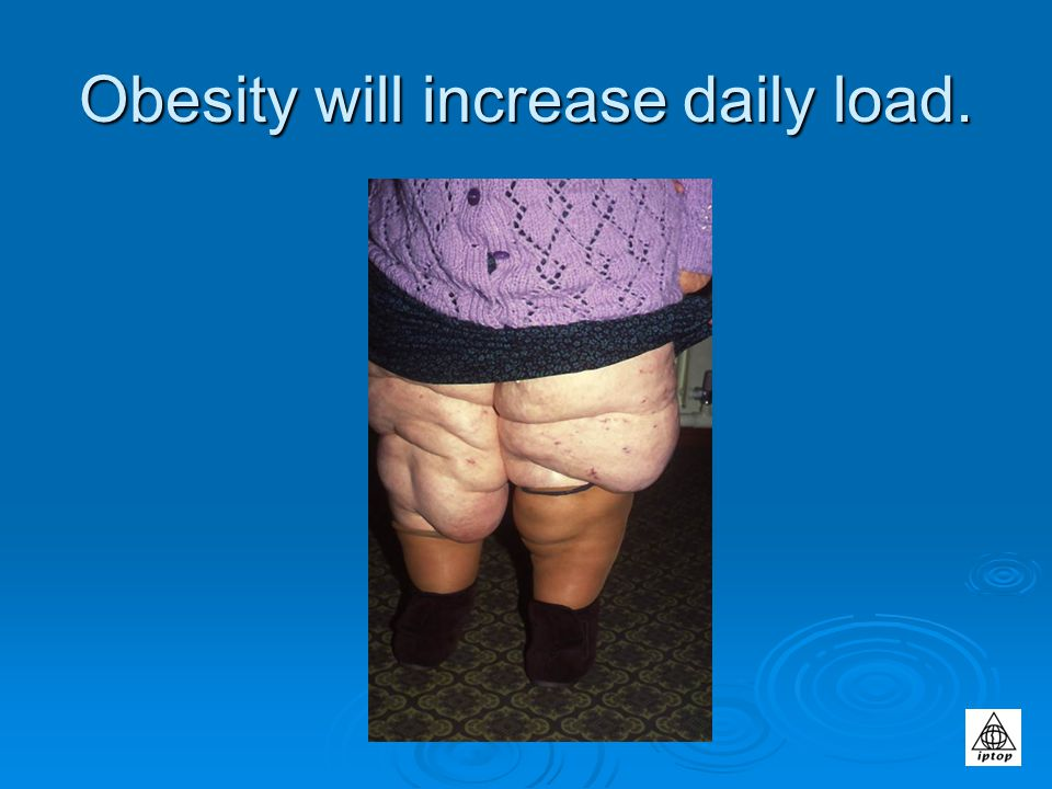 Obesity will increase daily load.