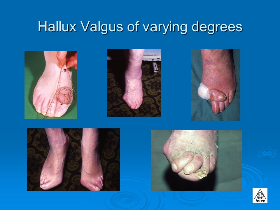 Hallux Valgus of varying degrees