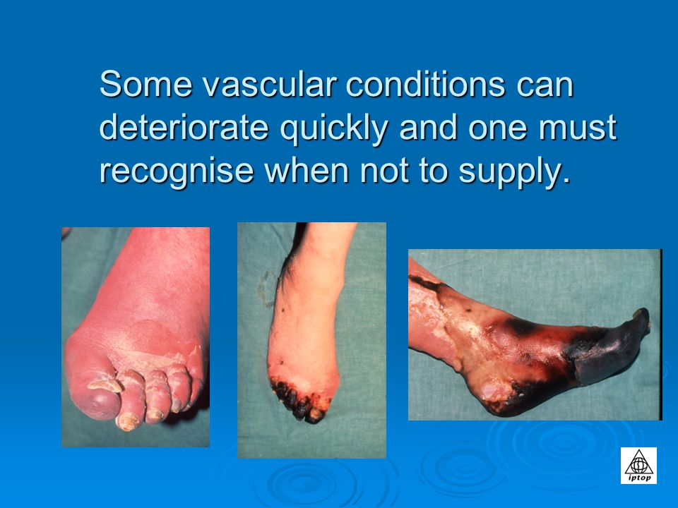 Some vascular conditions can deteriorate quickly and one must recognise when not to supply.
