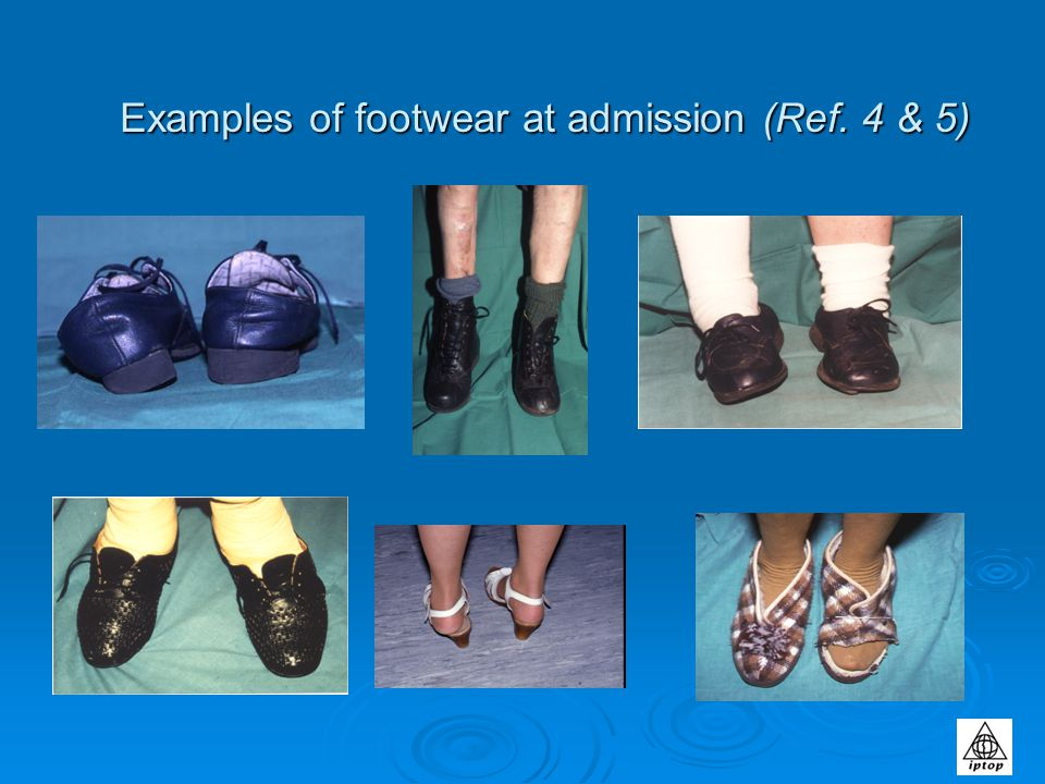 Footwear does affect gait Slip-on shoes increases tendency to shuffle.