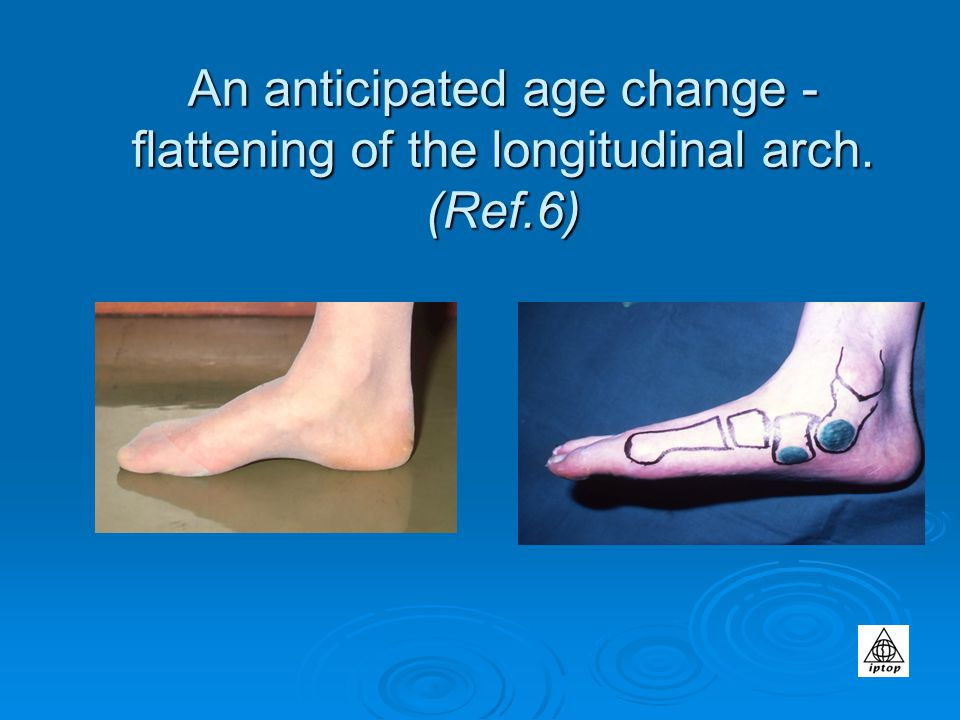 An anticipated age change - flattening of the longitudinal arch. (Ref.6)