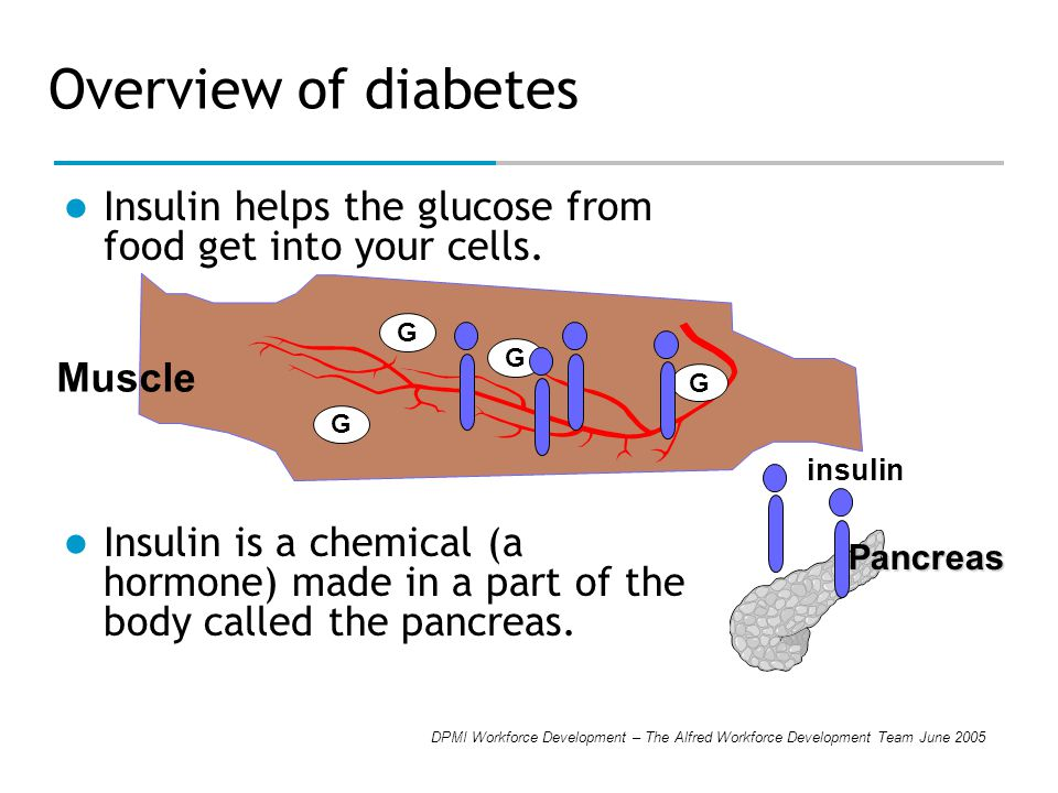 DPMI Workforce Development – The Alfred Workforce Development Team June 2005 Overview of diabetes If your body doesn t make enough insulin or if the insulin doesn t work the way it should, glucose can t get into cells.