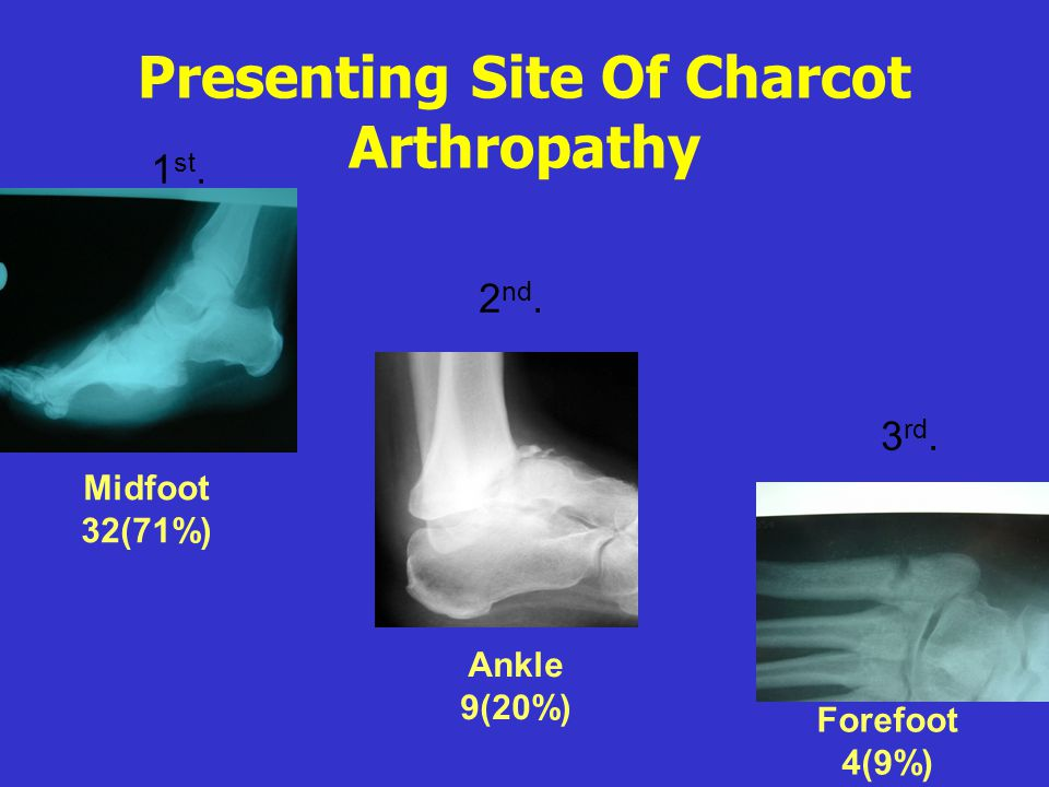 Presenting Site Of Charcot Arthropathy Forefoot 4(9%) Ankle 9(20%) Midfoot 32(71%) 1 st. 2 nd. 3 rd.