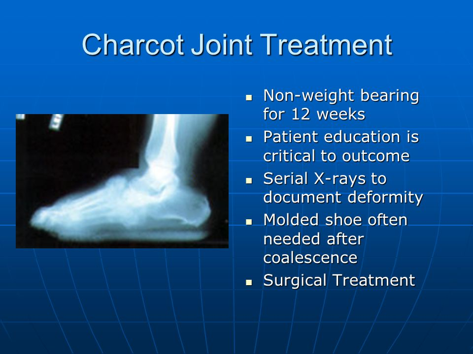 Charcot Joint Treatment Non-weight bearing for 12 weeks Non-weight bearing for 12 weeks Patient education is critical to outcome Patient education is