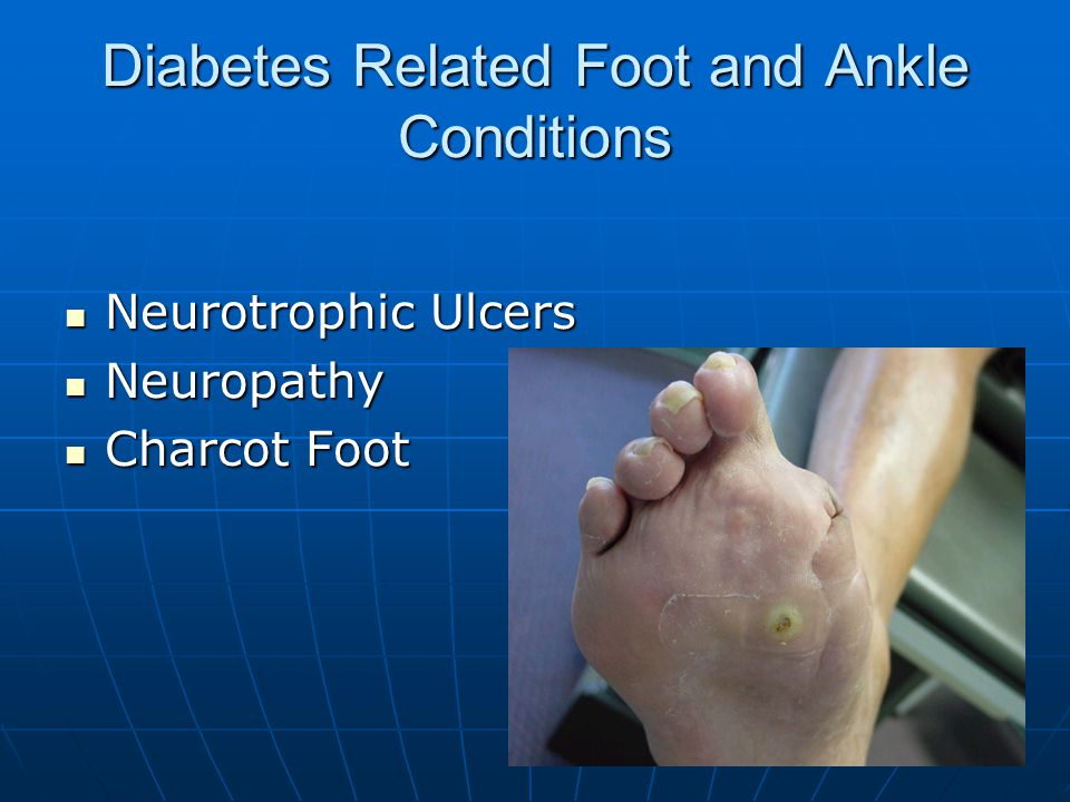 Diabetes Related Foot and Ankle Conditions Neurotrophic Ulcers Neurotrophic Ulcers Neuropathy Neuropathy Charcot Foot Charcot Foot