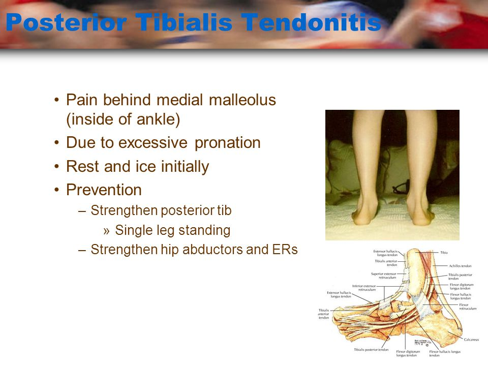 Tarsal Tunnel Syndrome Symptoms –Pain behind medial malleolus –Referred pain on medial and lateral plantar surface of foot –Numbness and tingling –Possible weakness of foot muscles –SERIOUS CONDITION
