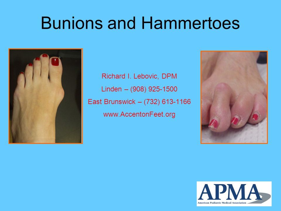 Bunions What is a bunion? Symptoms How they develop Treatment options